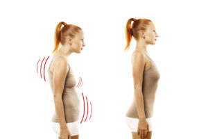How You Can Correct Poor Posture and Regain Personal Wellness